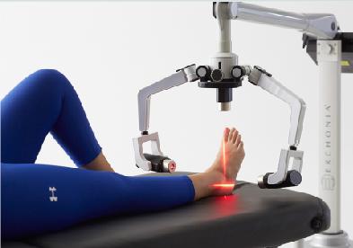 laser foot pain